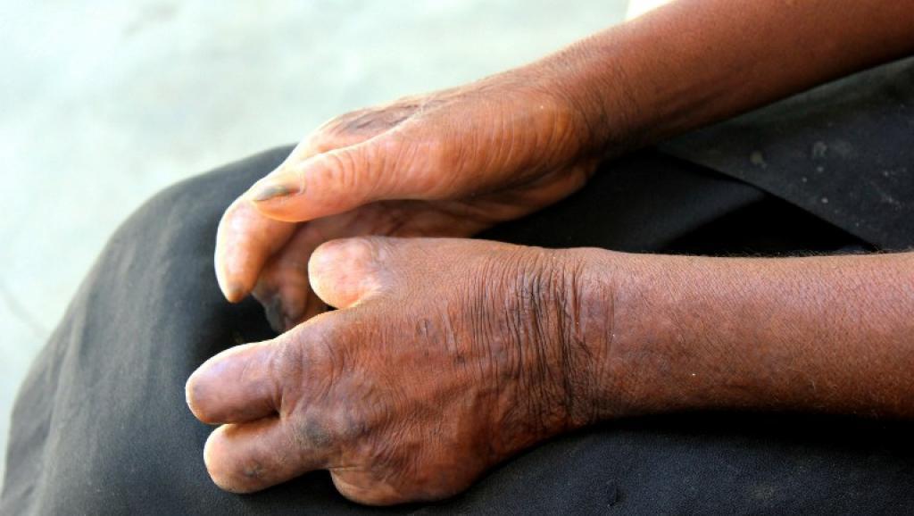 A Madagascar, les malades de la lèpre sont rejetés par la société